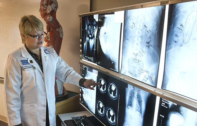 woman inspecting x-ray images
